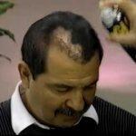 A solução para a falta de cabelo